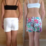 Photos showing before and after treatment of a 10 year old girl at Balance-Rite Osteopathy Clinic, Chertsey, Surrey.