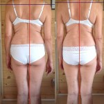 A comparison of photos taken before and after the first treatment
