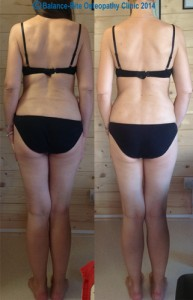 Photos showing before & after treatment