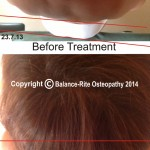 Photos showing a patient before and after treatment at Balance-Rite Osteopathy Clinic, Chertsey, Surrey.