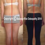 Photos showing a patient before and after treatment at Balance-Rite Osteopathy Clinic, Chertsey, Surrey