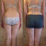 Photo showing a patient before & after treatment at Balance_Rite Osteopathy Clinic, Chertsey, Surrey