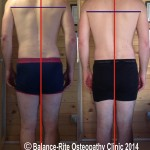 Photos showing how a patients alignment was left after a 'quick-fix' HVT was used at another clinic, in comparison to photo showing a more balanced & symmetrical framework after treatment at Balance-Rite Osteopathy Clinic.