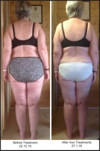 photo showing before & after classical osteopathy treatment
